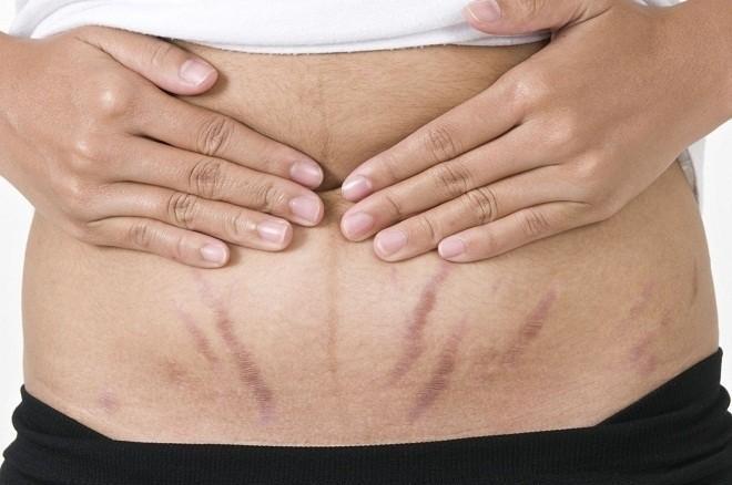 Da thâm sạm do sự thay đổi hormone trong thời gian mang thai